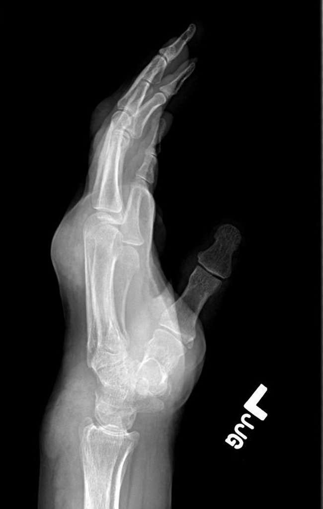 Bone_Gout_Radiology2_lateral_resized.jpg