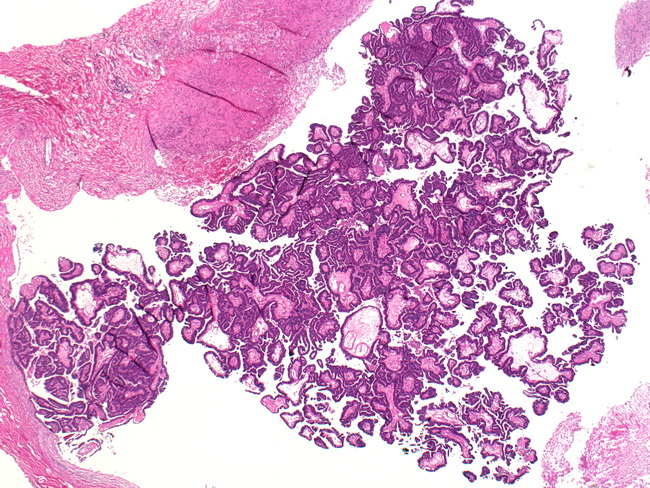 Intracystic papillary carcinoma breast