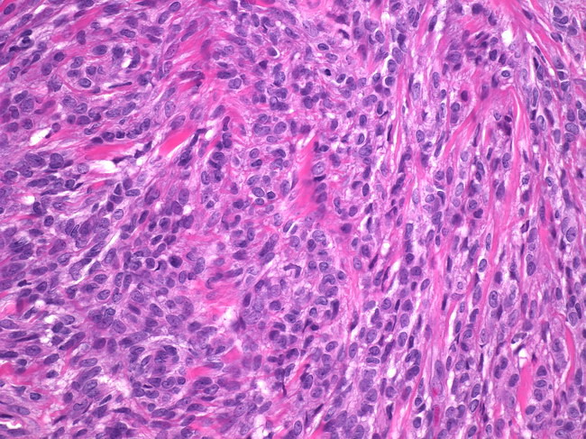 Breast_Myofibroblastoma6_Epithelioid.jpg