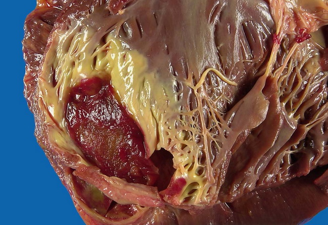 Mural thrombus for Define mural thrombus