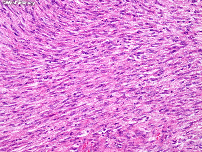 lymph node map with Image on Image together with 229 additionally Image in addition Image furthermore F.
