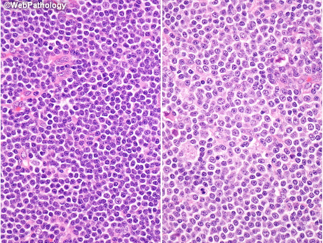 a comparison of chronic lymphocytic leukemia and lymphoma Leukemia, lymphoma,  patients & caregivers disease information facts and statistics facts and statistics  chronic lymphocytic (cll) 65-74 yrs 71.