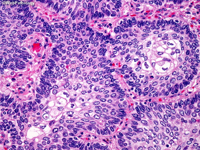 Lung_Neoplastic_SquamousCellCA22_Basaloid.jpg