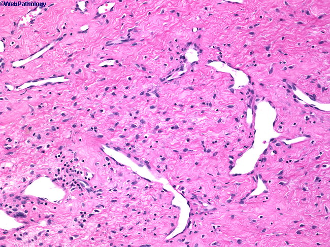 T Tapp Basic Plus Workout furthermore Case 257 Discussion additionally Case 265 Discussion additionally Cytology Of Csf further Case 334 Discussion. on brain lymph