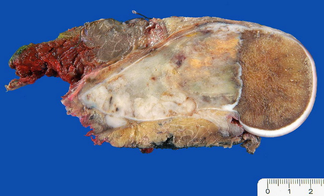 Orthopedic_Osteosarcoma2_Resized.jpg