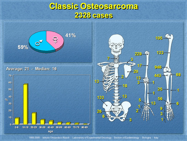 The Peak Incidence Of Osteosarcoma Is Seen In The Second Decade Of Life With A Male Predominance The Statistical Distribution Closely Follows The Skeletal