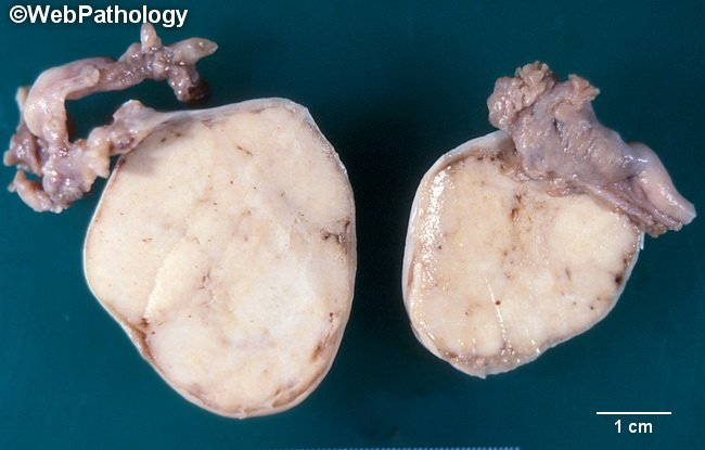 Ovary_BrennerTumor_Gross1_Bilateral_cropped(1).jpg