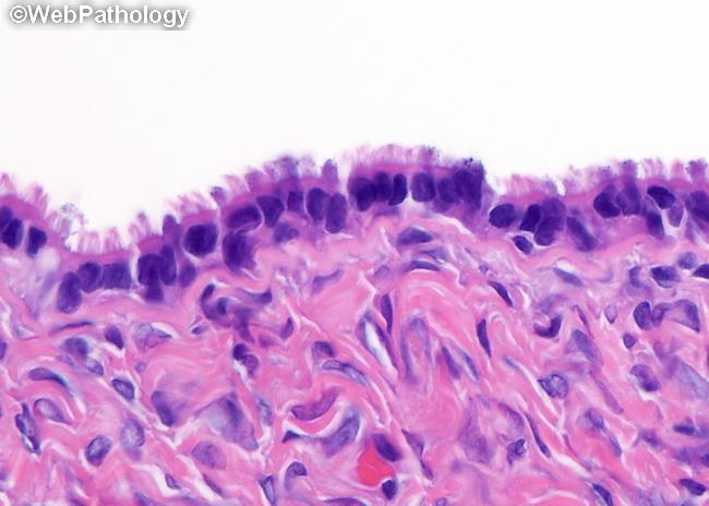 webpathologycom a collection of surgical pathology images