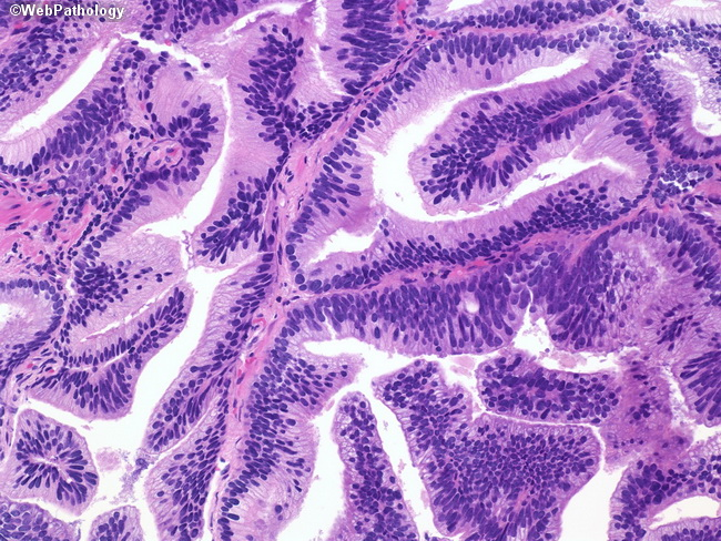 Adenocarcinoma of the prostate and breast enlargement