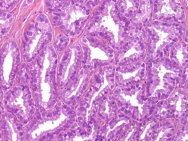 Webpathology.com: A Collection of Surgical Pathology Images