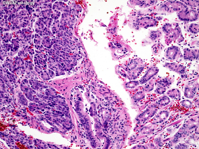 Webpathology A Collection Of Surgical Pathology Images