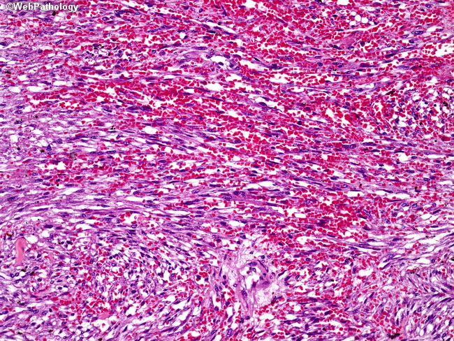 Kaposi s sarcoma a vascular malignant tumor