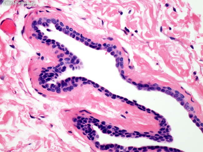 eccrine hidrocystoma