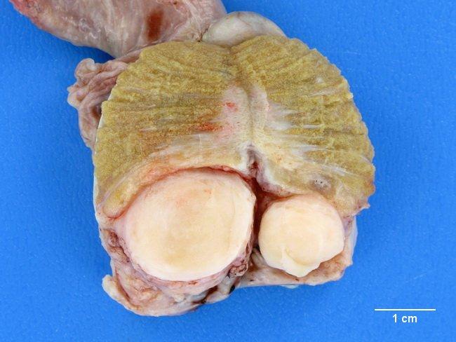 Adenomatoid Odontogenic Tumor Gross Webpathology.com: A Co...