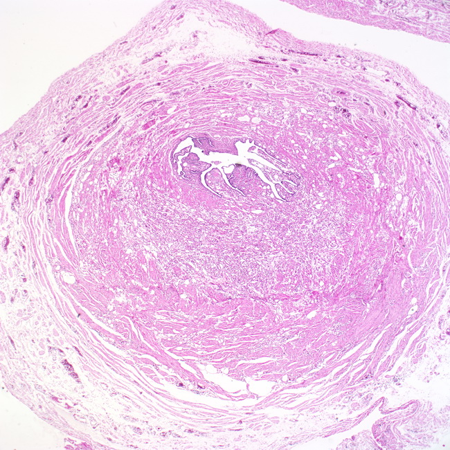 Uterine Tube Slide Webpathology.co...