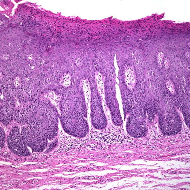 Vulvar Intraepithelial Neoplasia (vin) Webpathology.co...