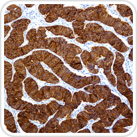 thumbnail image of Endocrine microscope section
