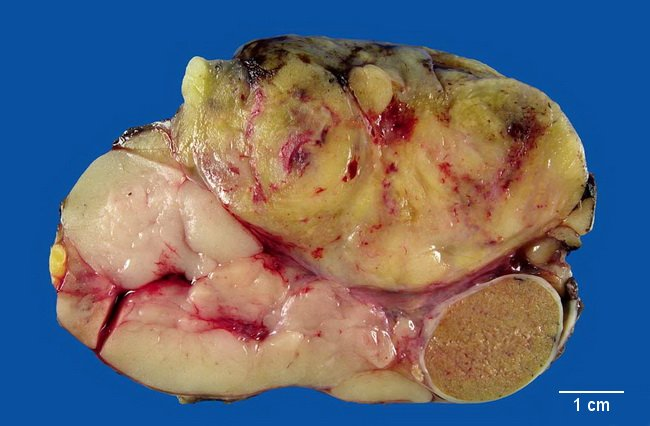 Adnexa3_Peritesticular_WellDiffLiposarcoma_Resized.jpg