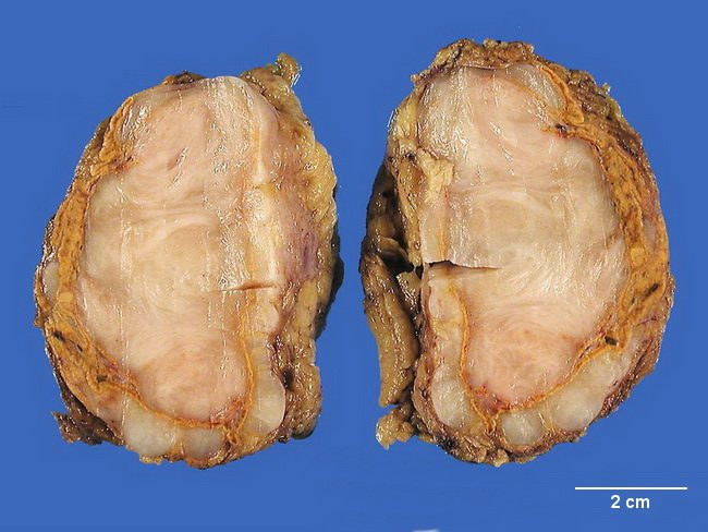 Adrenal_Ganglioneuroma_Gross1_resized.jpg