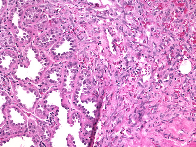 Breast_Angiosarcoma7_IntGrade.jpg