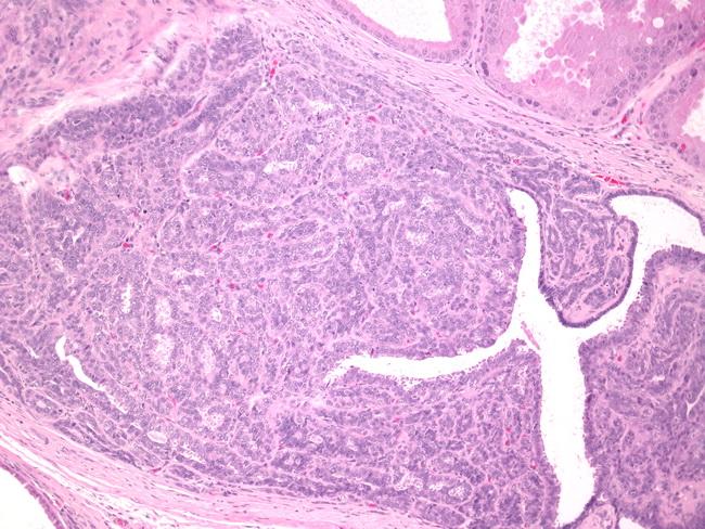 duct papilloma pathology)