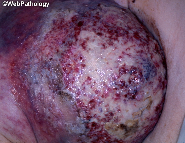 Breast_Carcinoma_Pagets1_Gross.jpg