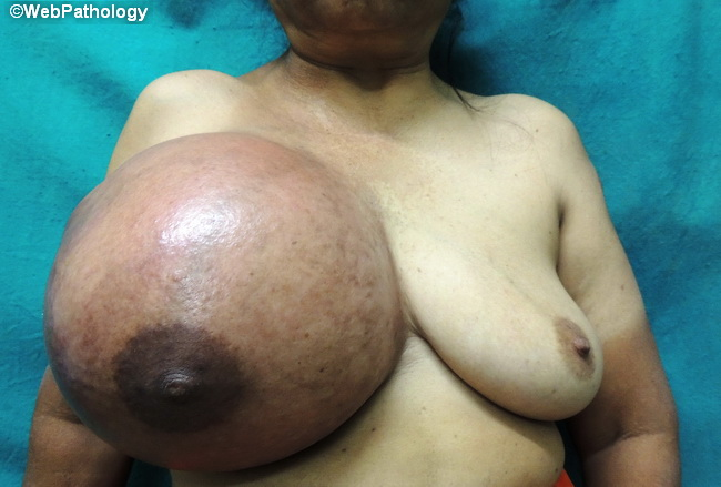 Breast_PhyllodesTumor_Clinical1_Cropped.jpg