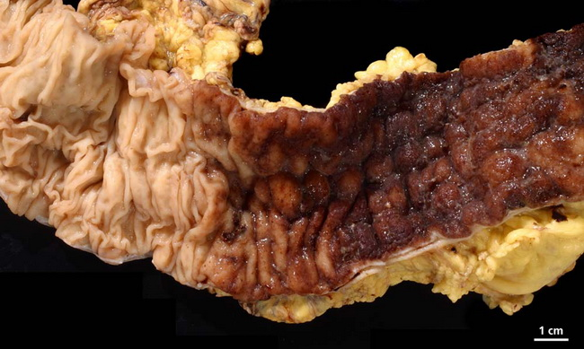 Colon_UlcerativeColitis_GrossB_resized.jpg