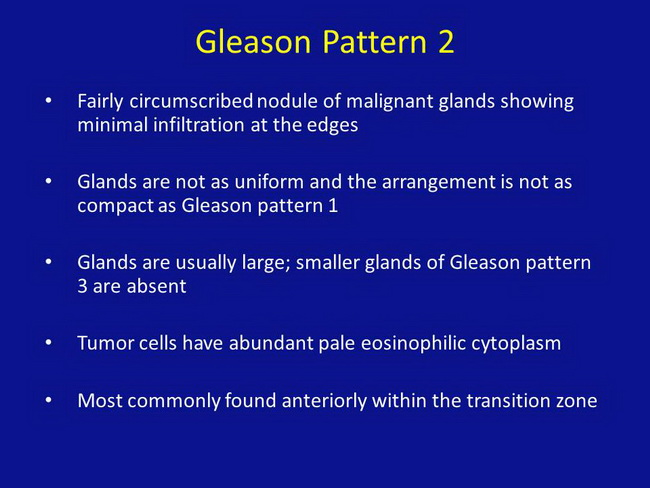 Gleason Pattern 2_Resized.jpg