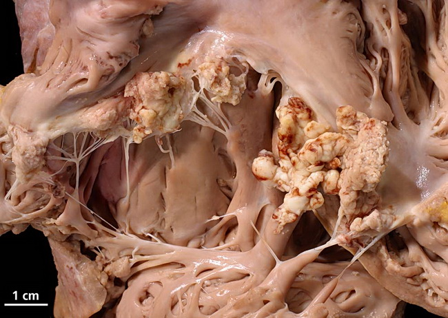 Heart_InfectiveEndocarditis5_resized.jpg