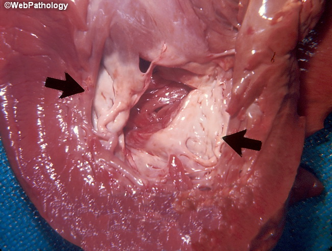 Heart_Thrombus_OrganizedFibrosed_cropped(1).jpg