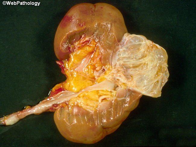 Kidney_MulticysticNephroma2_cropped.jpg