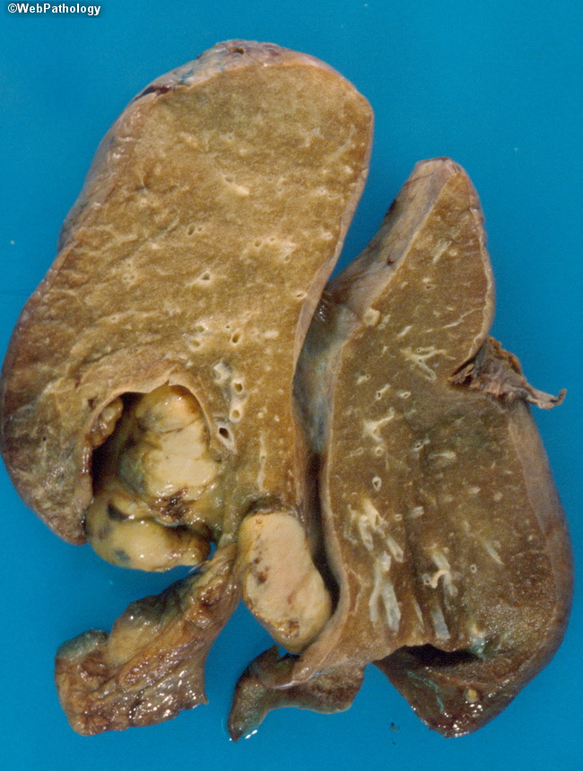 Lung_Mets_OsteogenicSarcoma2.jpg