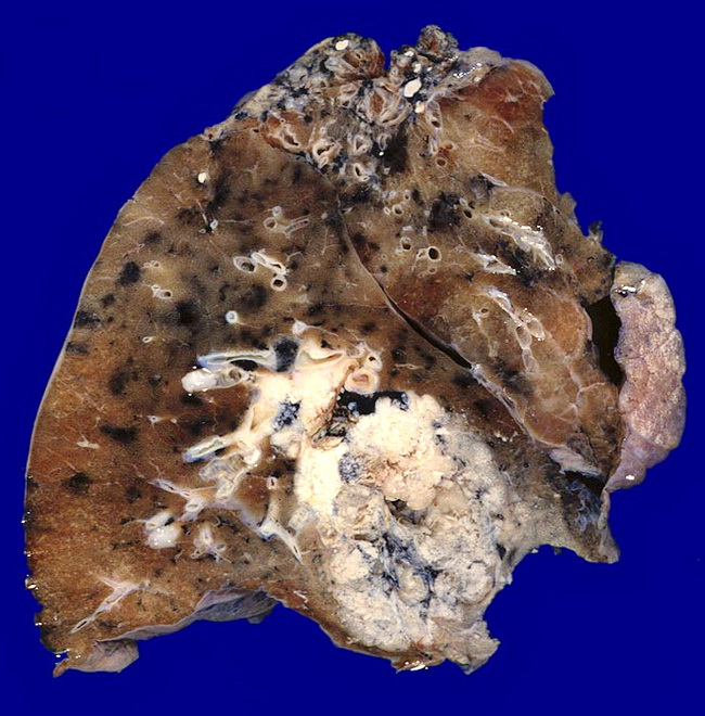 Lung_Neoplastic_SCC_Gross2_Resized.jpg