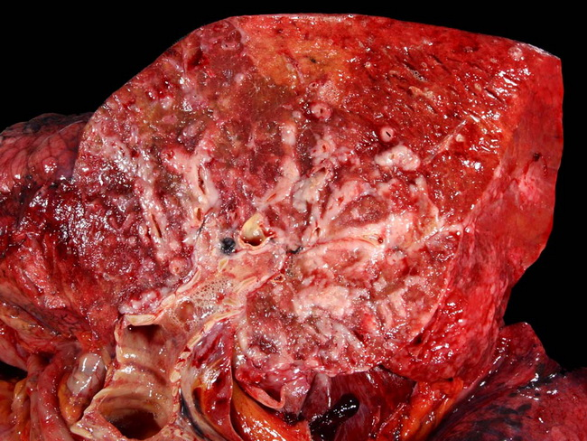 Lungs_Neoplastic_SmallCellCA_Gross_resized.jpg