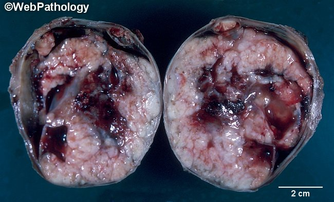 Ovary_ClearCellCarcinoma_Gross1_cropped.jpg