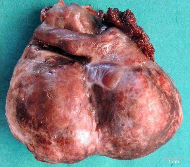 Webpathology com: A Collection of Surgical Pathology Images