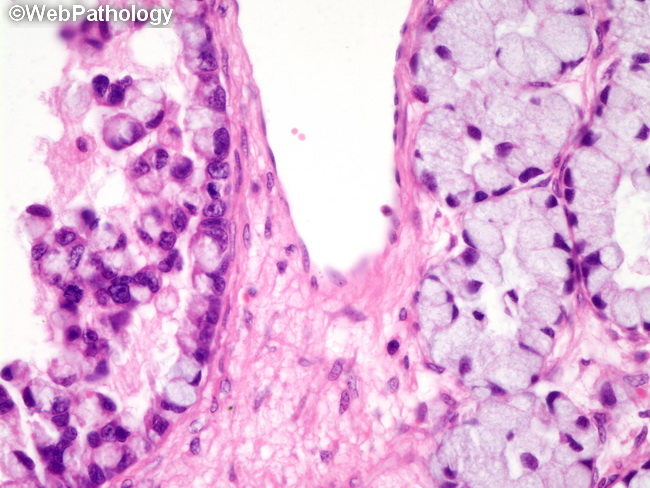Ovary_MBT35_IntramucosalCA.jpg