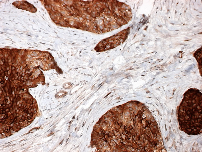 Peritoneum DSRCT NSE Resized Close Comments Immunohistochemically Intra Abdominal Desmoplastic Small Round Cell