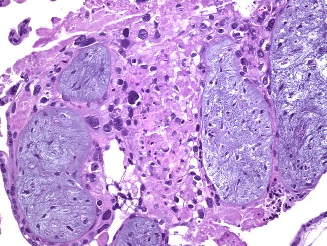CASE REPORT: A Hydatidiform Mole Can Cause Severe ...