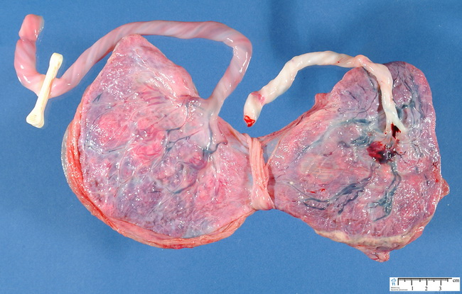 Placenta_DiAmnionicDiChorionicTwins_Resized.jpg
