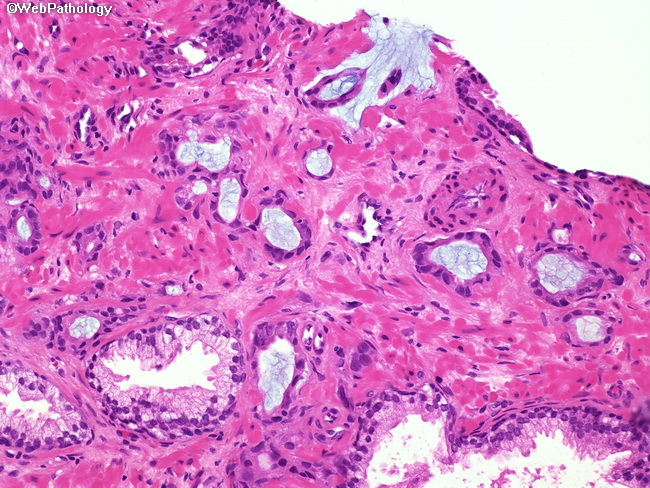 prostata adenocarcinoma mucinoso