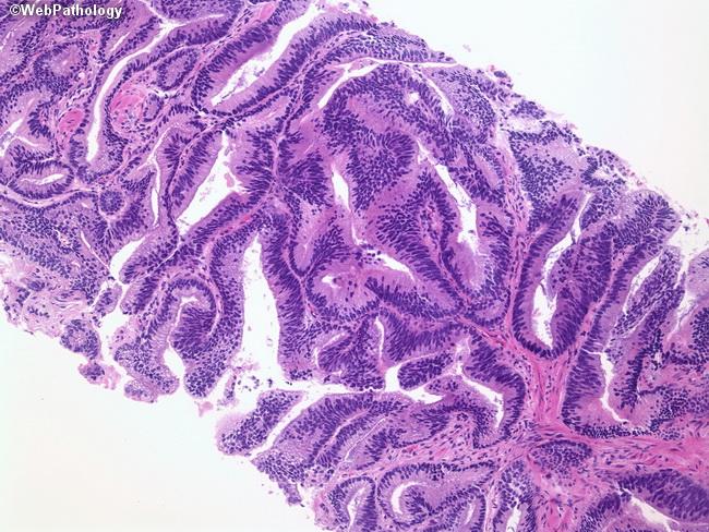 prostate ductal carcinoma pathology outlines prostata uy sharoitida davolash