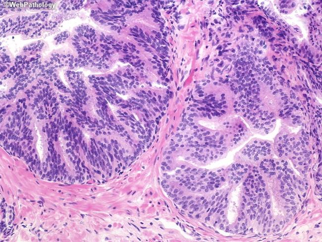 Pathology Outlines - HGPIN