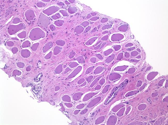 Webpathology A Collection Of Surgical Pathology Images