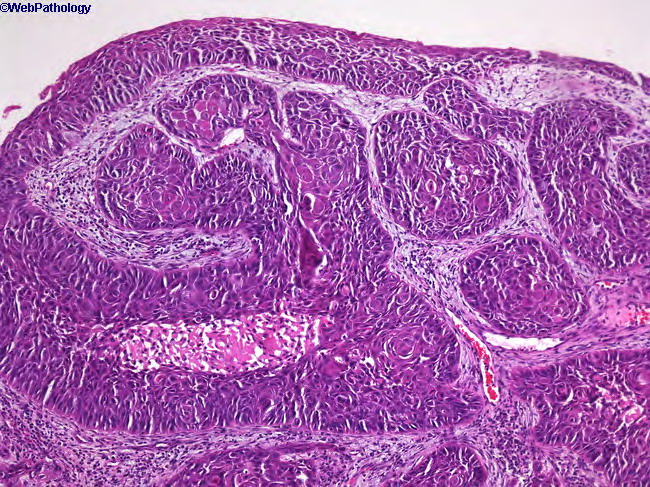 webpathology com  a collection of surgical pathology images