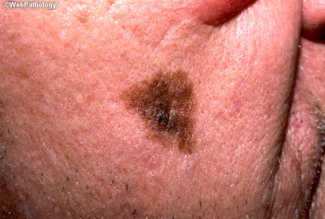 Lentigo malign melanom