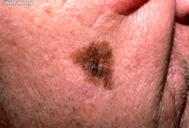 Злокачествен меланом на лентиго