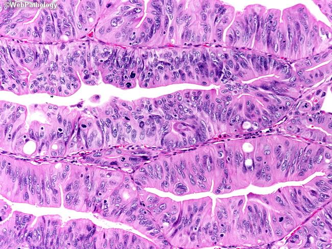 Webpathology Com A Collection Of Surgical Pathology Images