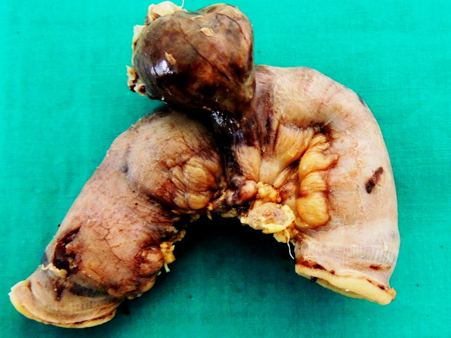 SmallBowel_MeckelsDiverticulum_Gangrene4_resized.jpg